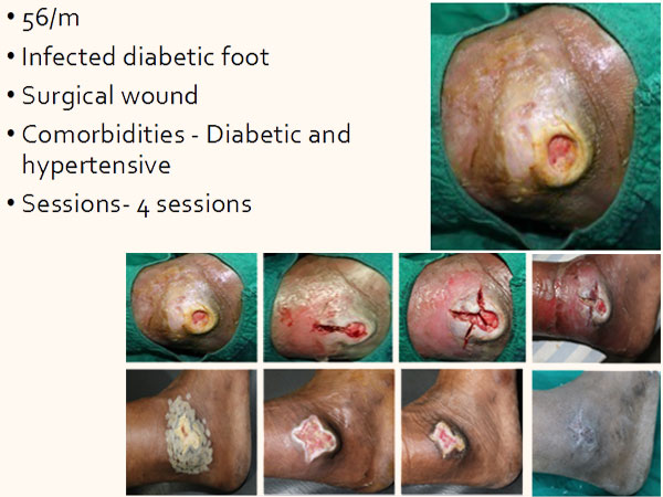 At Elrevo Clinic Diabetic Foot Results