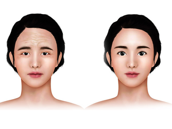 FOREHEAD LIFT (BROW LIFT)