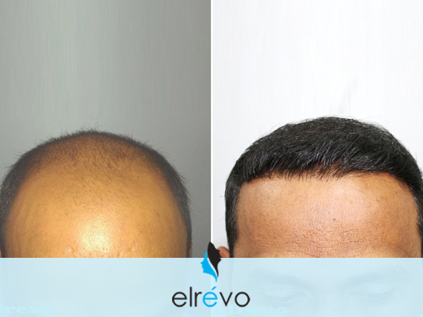 Hair Transplant Surgery in Maharashtra