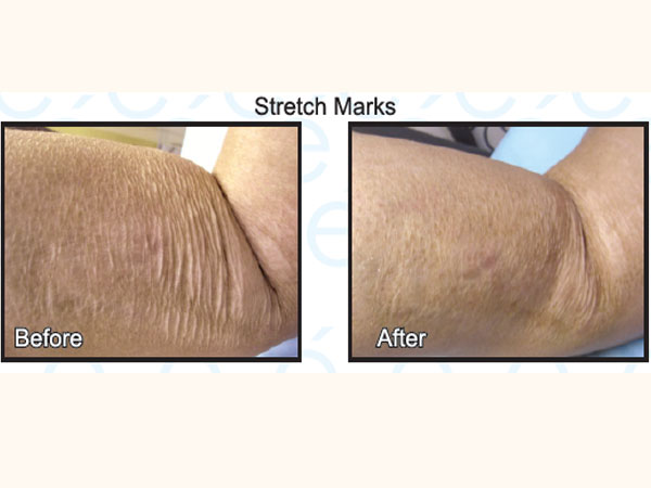 STRETCH MARKS, Traumatic Scar, SCAR TREATMENT